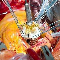 OP - künstliche Herzklappe